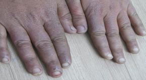 Arthritis Specialist in