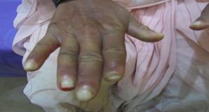 Rheumatoid Arthritis Treatment in Pune