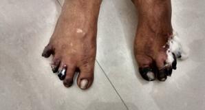 Sandhivata Treatment in Pune