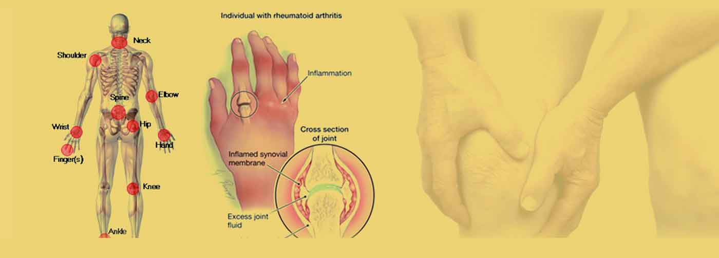 - Rheumatology treatment in pune