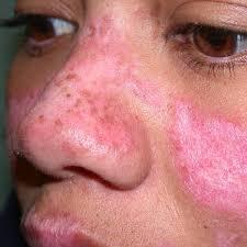 Treatment of Lupus in Pune