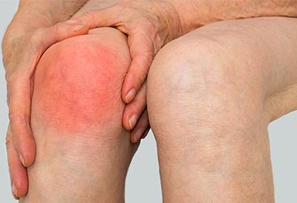 Rheumatoid Arthritis Specialist in Pune